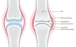Pijn door fibromyalgie of artrose